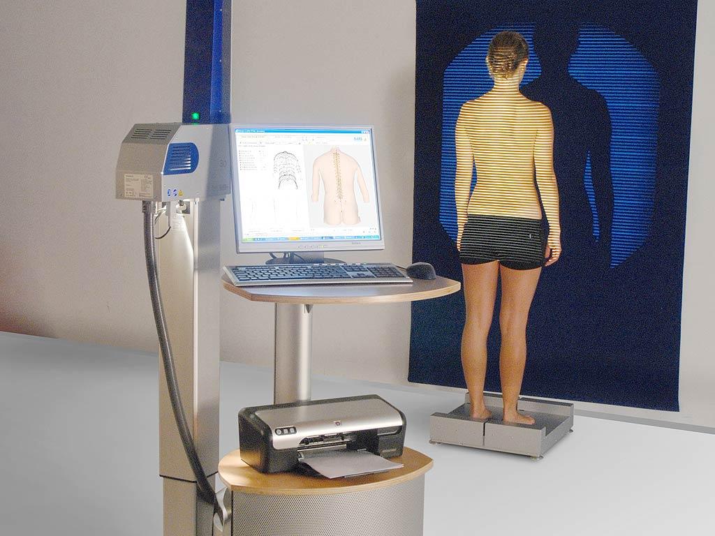 3D/4D-Wirbelsäulenanalyse, Foto: (c) DIERS International GmbH, mit freundlicher Genehmigung